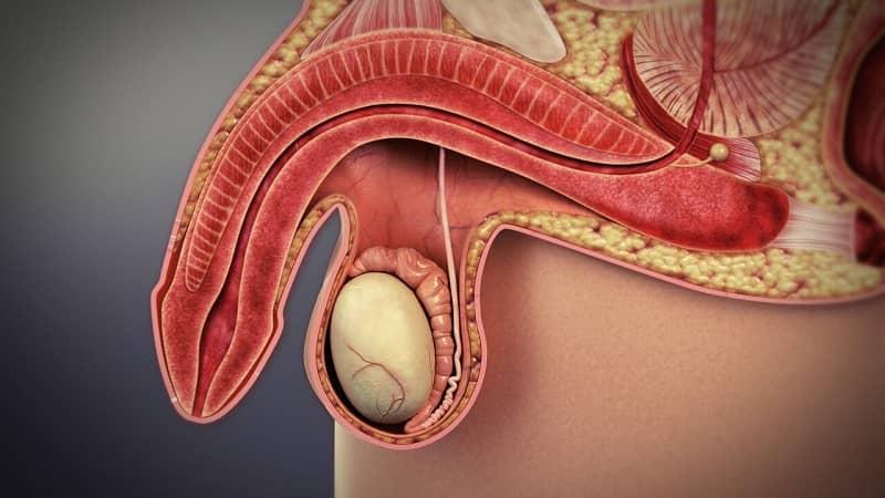 Peyronie-Disease