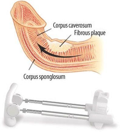correct penis curvature